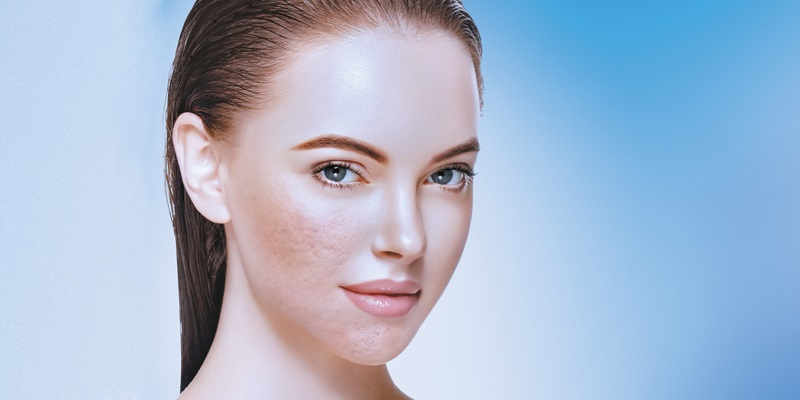 DERMAL FILLERS FOR ACNE SCARS THE ULTIMATE GUIDE