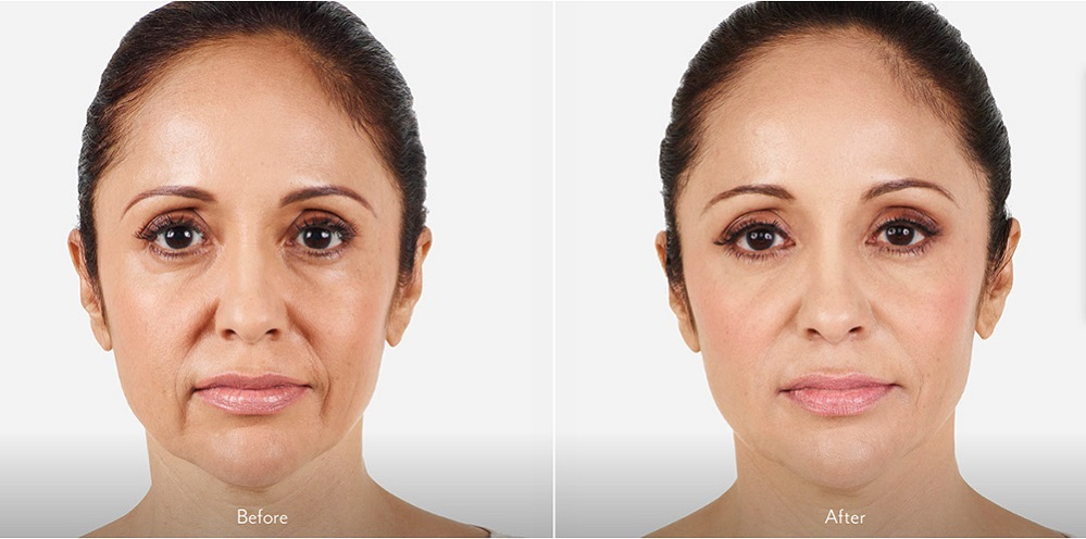 Dermal Fillers for Lines Around the Mouth