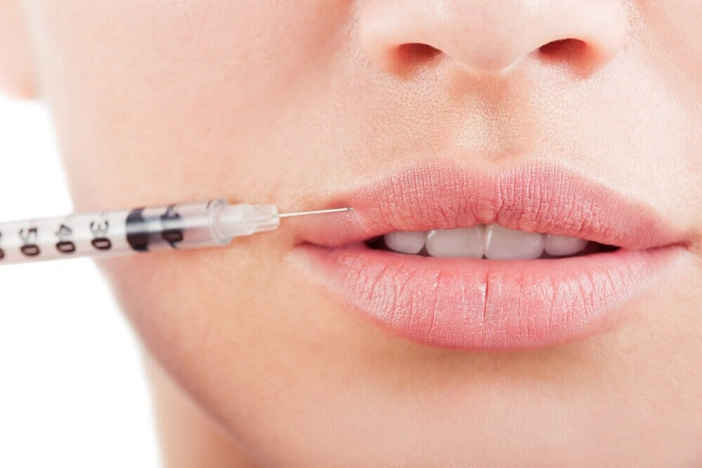 HOW DO LIP FILLERS WORK?