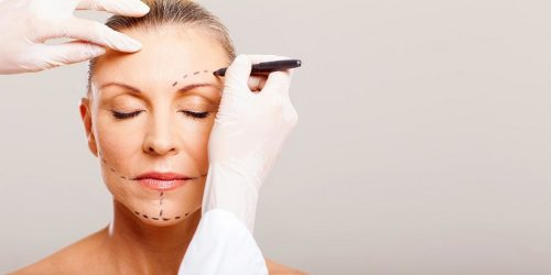 Botulinum Toxins treatment for facial hyperkinetic wrinkle lines